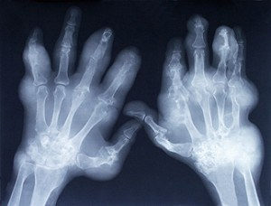 Arthitic Hands