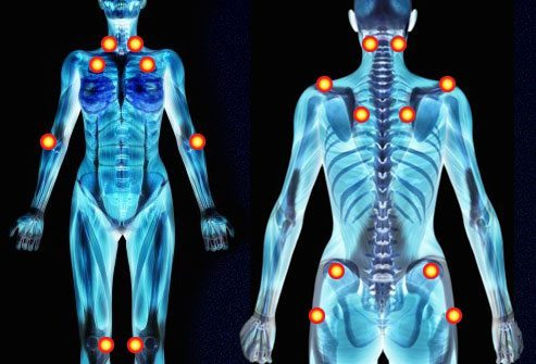 fibromyalgia skeleton