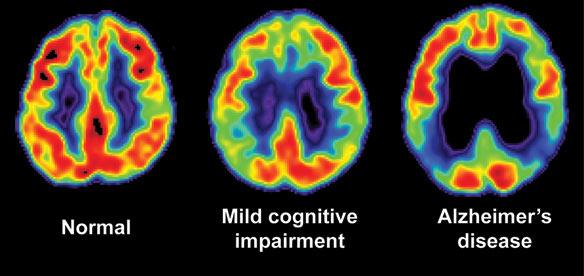 Demential Alzheimer's