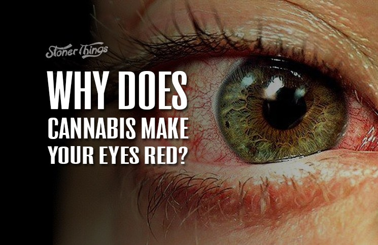 how to get rid of bloodshot eyes weed